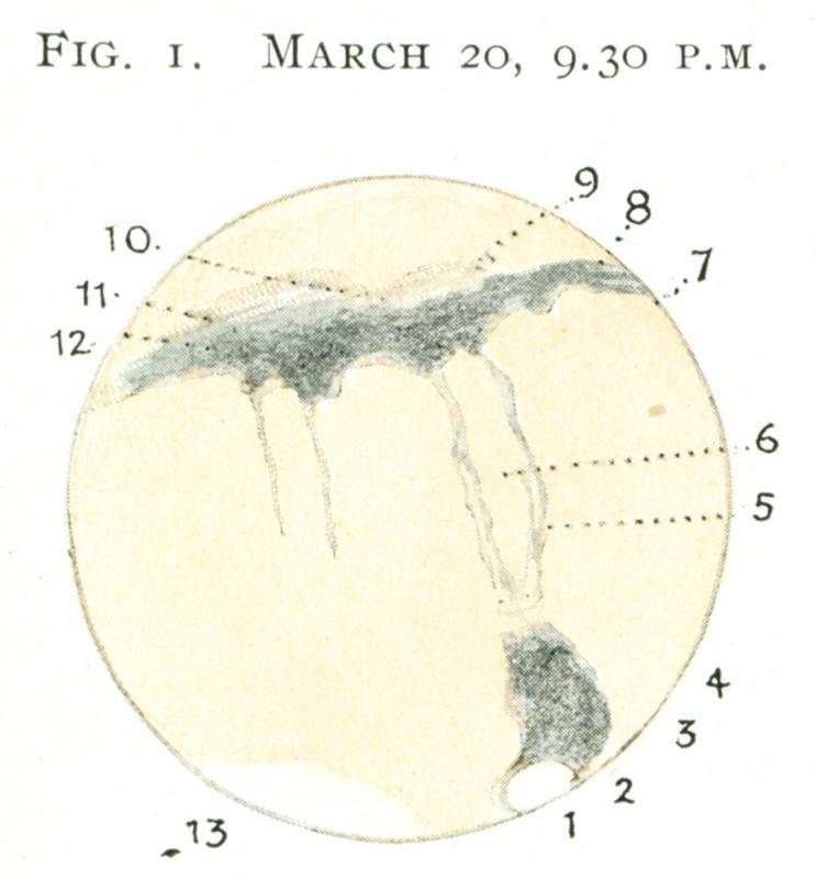 Mars 19180320-2130